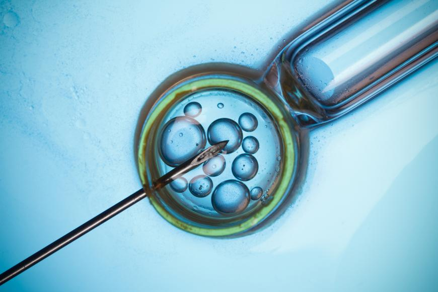 Do IVF Babies Face Greater Risk Of Premature Birth?